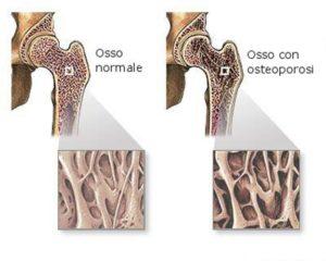 Densitometria Ossea Computerizzata (M.O.C.) Dexa Alemanno A.