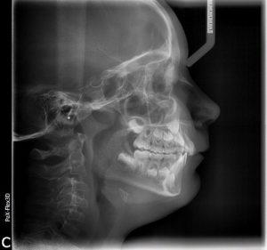 radiologia dentale Alemanno A. Tricase